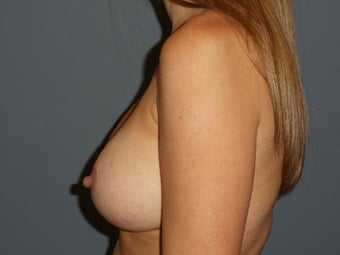 31 Year Old Female Desiring Breast Augmentation 986873