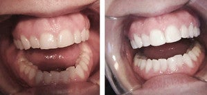 Dental Bridge and Bonding Procedure  before 997147