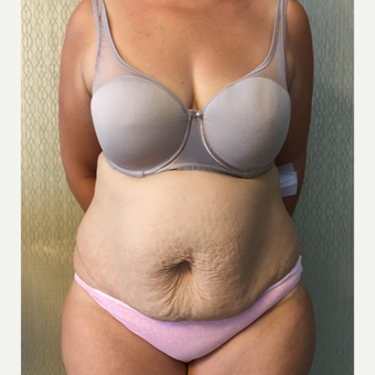 45-54 year old woman treated with Tummy Tuck before 3563013
