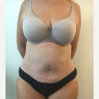 45-54 year old woman treated with Tummy Tuck after 3563013