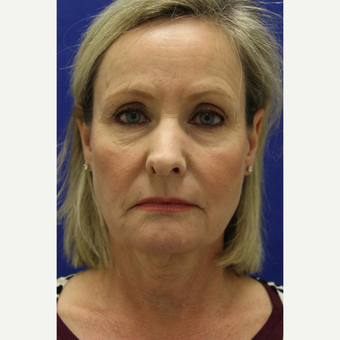 55-64 year old woman treated with Facelift before 3239264