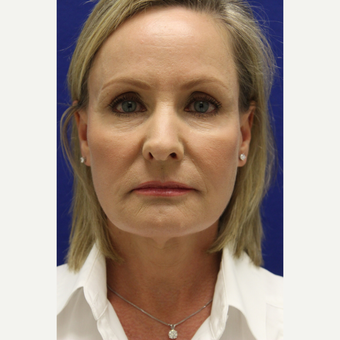 55-64 year old woman treated with Facelift after 3239264