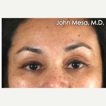 25-34 year old woman treated with Eye Bags Treatment before 3659895