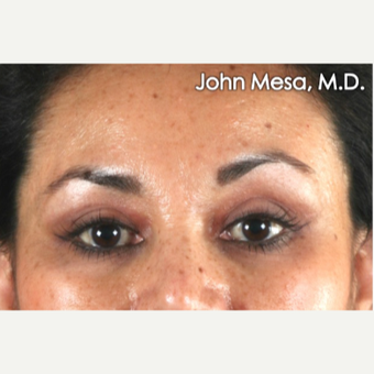 25-34 year old woman treated with Eye Bags Treatment after 3659895