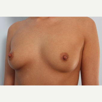Breast Augmentation before 3345604