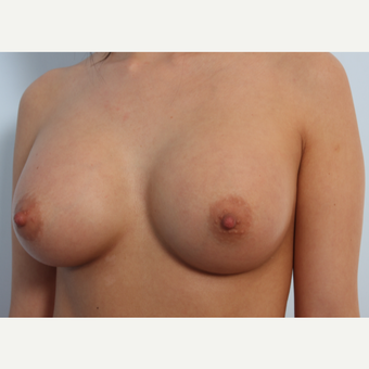 Breast Augmentation after 3345604