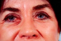 Eyelid Surgery after 3446346