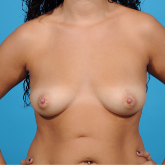 25-34 year old woman treated with Breast Augmentation before 3810843