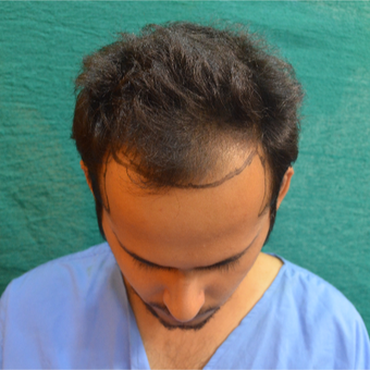 18-24 year old man treated with Hair Transplant before 2710381