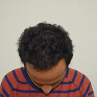 18-24 year old man treated with Hair Transplant after 2710381