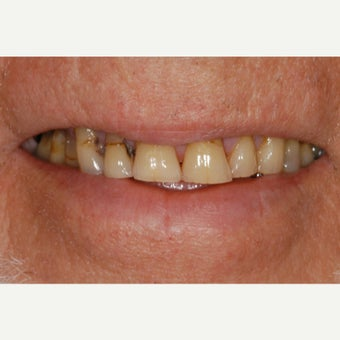 55-64 year old man treated with All-on-4 Dental Implants before 2273069