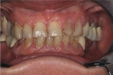 75 and up year old woman treated with Porcelain Veneers before 3241499