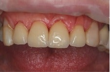 75 and up year old woman treated with Porcelain Veneers after 3241499