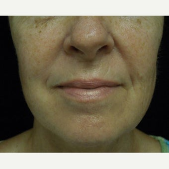 55-64 year old woman treated with Photofacial before 2297088