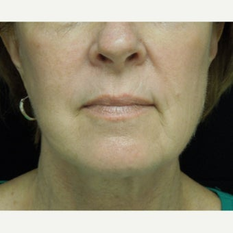 55-64 year old woman treated with Photofacial after 2297088