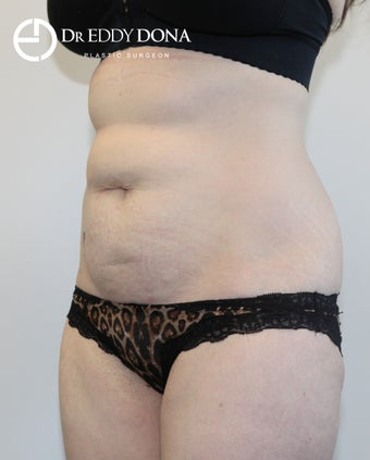 35-44 year old woman treated with Tummy Tuck 2859323