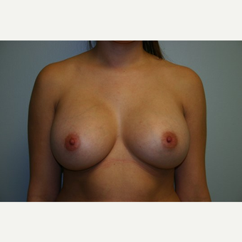 23 year old woman treated with Breast Augmentation after 3444143