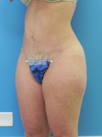 37 Year Old Female ~ Abdominoplasty 1401951