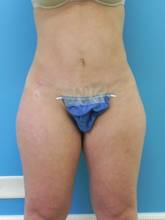 37 Year Old Female ~ Abdominoplasty after 1401951