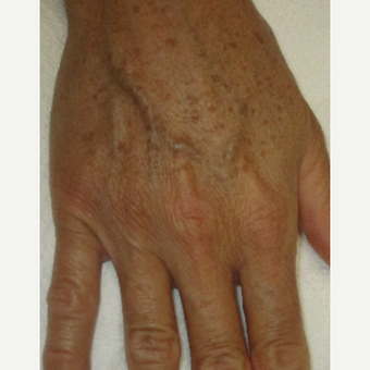 45-54 year old woman treated with IPL before 3370799