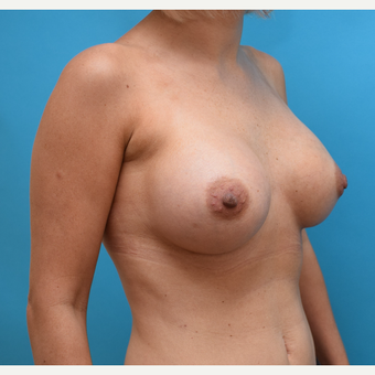 25-34 year old woman treated with Breast Implants after 3042178