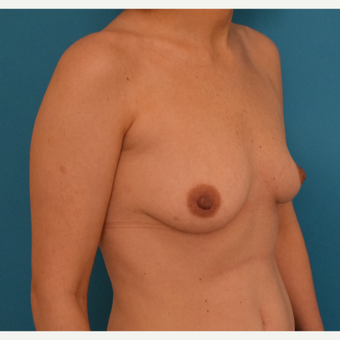 25-34 year old woman treated with Breast Implants before 3042178