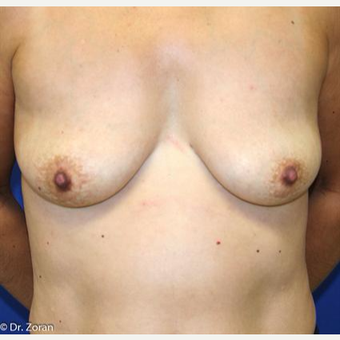 45-54 year old woman treated with Breast Augmentation before 3037389