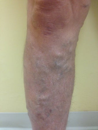 55  year old male with varicose veins treated by EVLT