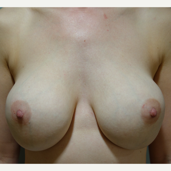 35-44 year old woman treated with Breast Implant Removal before 3142611