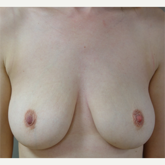 35-44 year old woman treated with Breast Implant Removal after 3142611