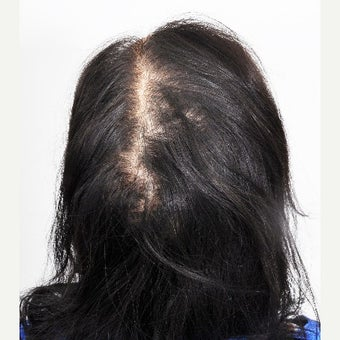 40 year old woman treated with PRP for Hair Loss before 2180888