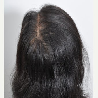 40 year old woman treated with PRP for Hair Loss after 2180888