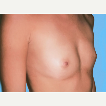 Breast Augmentation before 3732413