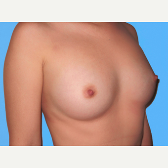 Breast Augmentation after 3732413