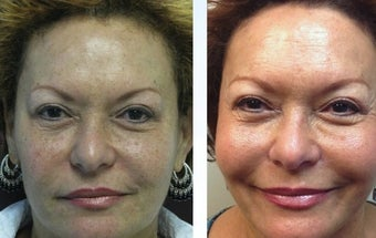 64 yo African American TCA peel and Sculptra before 1098258
