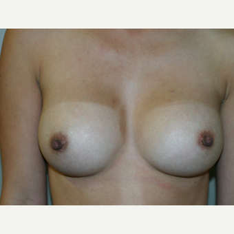 25-34 year old woman treated with Breast Implants after 3154125