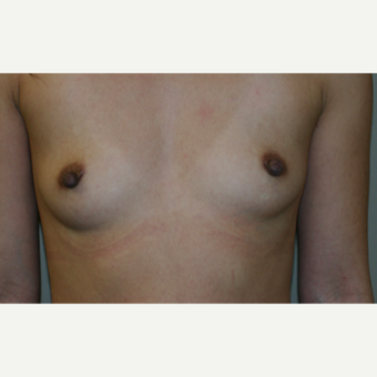 25-34 year old woman treated with Breast Implants before 3154125