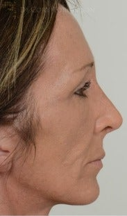 45-54 year old woman treated with Rhinoplasty after 3259912