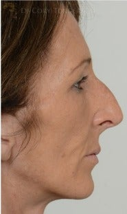 45-54 year old woman treated with Rhinoplasty before 3259912
