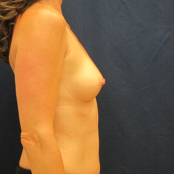 45-54 year old woman treated with Breast Implants before 3301114