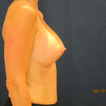 45-54 year old woman treated with Breast Implants after 3301114