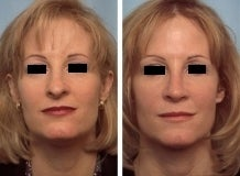 Rhinoplasty before 143648