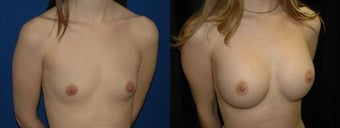 30 year old woman treated with Breast Augmentation before 2990474