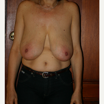 45-54 year old woman treated with Breast Reduction before 3185314