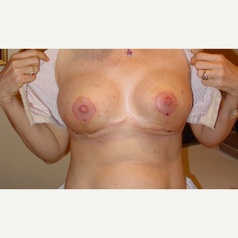 45-54 year old woman treated with Breast Reduction after 3185314