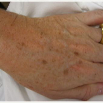 IPL to hands After 2 treatments before 3213480