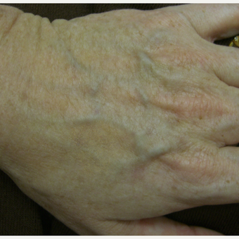 IPL to hands After 2 treatments after 3213480