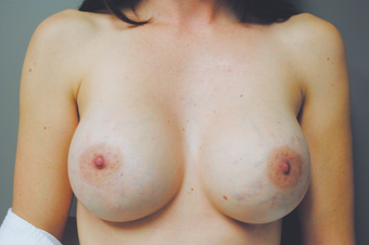 Inspira Breast Implants after 1515961