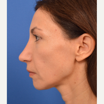 Revision Rhinoplasty after 3220615