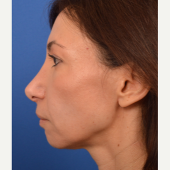 Revision Rhinoplasty before 3220615